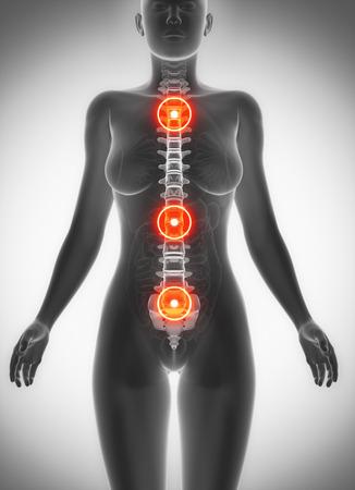 内臓疲労からの腰痛の図