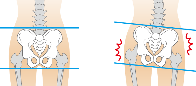 骨盤のゆがみイメージ図