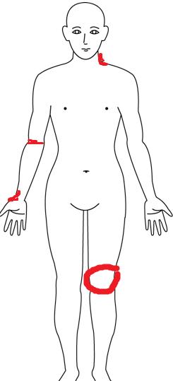膝の人体図
